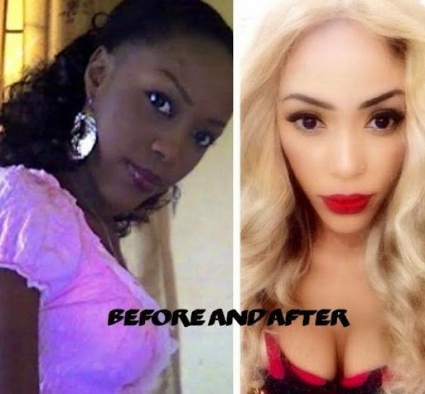 Nigeria Has The Highest Number Of Women Bleaching Their