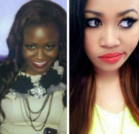 African Celebrities Who Have Undergone Plastic Surgery ...