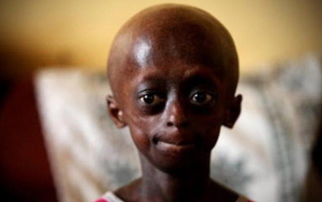 Meet Ontlametse Phalatse: The First Among The Black Kids ...