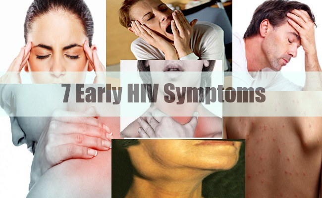Be Aware! If You See These Symptoms, go for an HIV Test ...