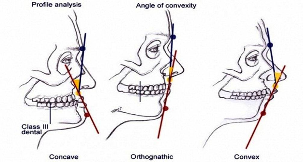 facial-analysis-facial-profile
