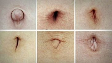 Take A look At Your Navel! If You Have One Of These Shapes