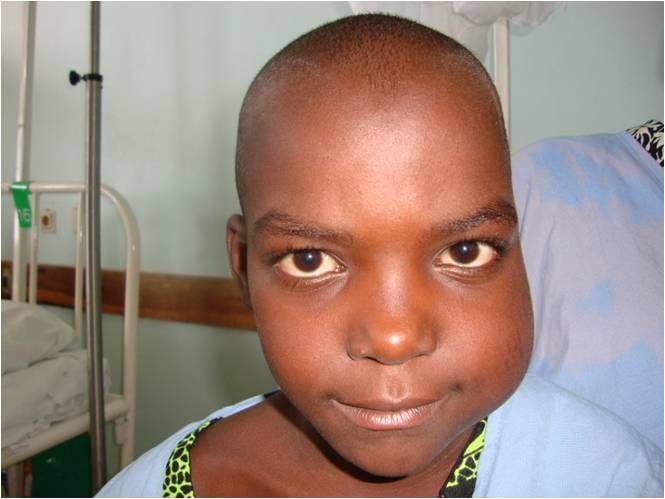 Child With Burkitt Lymphoma Before Treatment Large How